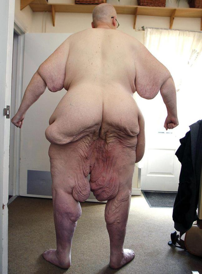 PHOTOS: Former world's fattest man poses naked