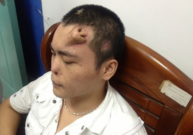 Chinese grows nose for transplant on forehead