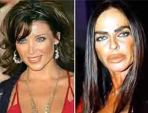 italys-michaela-romanini-used-to-be-considered-one-of-the-most-beautiful-women-in-the-country-now-shes-unrecognizable